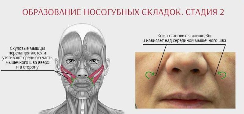 kak-razgladit-nosogubnye-skladki-006.jpg